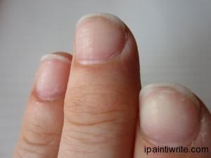 Fingernail mutilation.